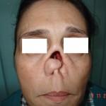 esiti da trauna della piramide nasale