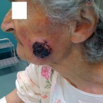 tumore cutaneo