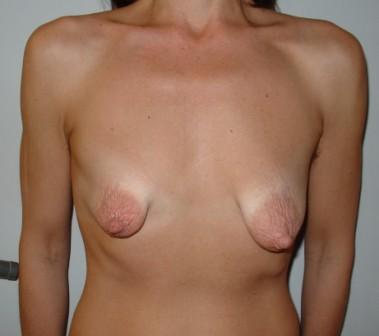 Penkowa breasts tuberose bryster