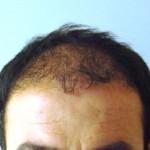 trapianto monobulbare del capello