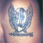 asportazione tatuaggio con laser q-switched