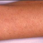 rimozione tatuaggio con laser