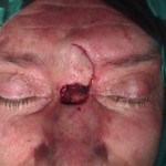 Tumori della pelle chirurgia plastica napoli